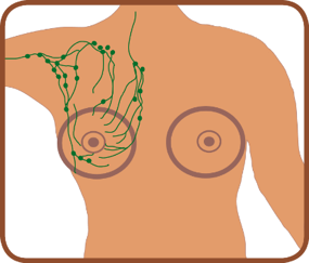 diagram of breast showing the location of the lymph nodes under the left breast and extends to under the arm and towards the shoulders