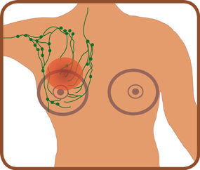 diagram of breasts and lymph nodes with a red circle symbolising lymphoedema