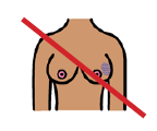 An illustration of a pair of breasts with one breast marked to symbolise breast cancer with a red line diagonally across the image