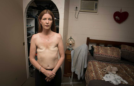 Jeannie Christie poses shirtless, showing the visible scars left from her breast cancer surgery.